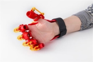 3D Yazıcı ile El Ortezi Üretildi