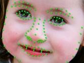 Genetik Hastalıkları Teşhis Eden Yapay Zeka Geliştirildi
