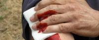 Elektriksel Darbeler Kan Kaybını Azaltacak