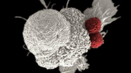 Kanser Tedavisinde Makine Öğrenimi Kullanılıyor