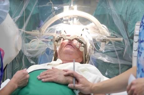 Beyin Stimülasyonu İle Psikiyatrik Bozukluklar Tedavi Edilebilecek