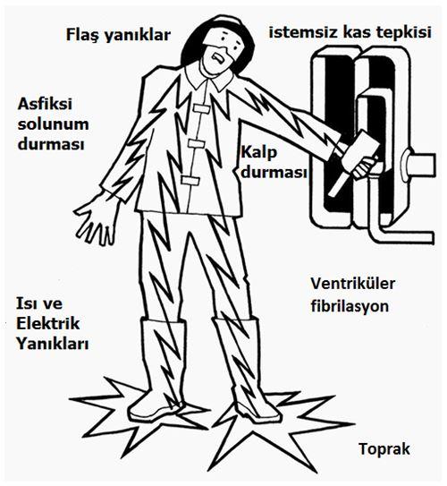Elektrik çarpmasının vücut üzerindeki etkileri