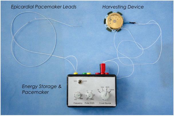 Enerjisini kendisi sağlayan kalp pili sinyaller bulunan bir elektronik devre içerisine küçük bir arabellek kapasitesi ile enerji depolama test edilir.