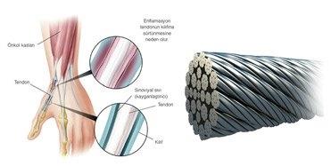 Çelik Halat; tendonların birbirine karışmayan, dayanıklı yapısından esinlenmesinden yapılmıştır.