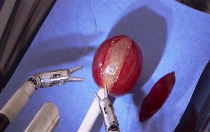 daVinci: Robotik cerrahi alanında en önemli robotlardan biri olan daVinci, tamamen bir cerrah tarafından kontrol ediliyor. Birkaç küçük insizyonla ve en yüksek hassasiyetle ameliyatların yapılmasını sağlıyor. Bu da daha az kanama, daha hızlı iyileşme ve daha az enfeksiyon riski anlamına geliyor.